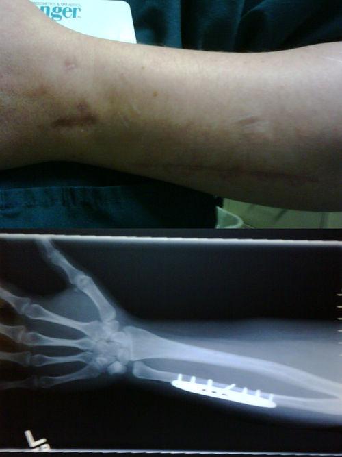 December arm inside out